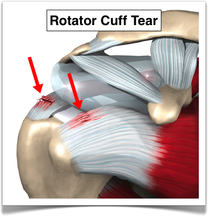 Does A Rotator Cuff Heal On Its Own